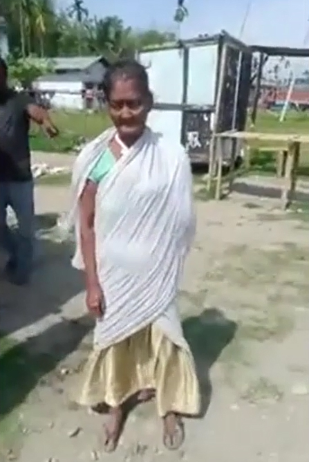 75-year-old injured woman forced to walk